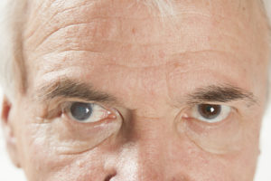 Picture of a senile cataract eye